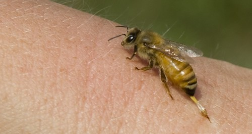 Home-Remedies-for-Bee-Sting